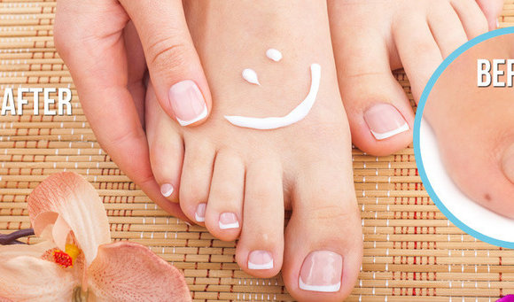 Top 4 Remedies To Treat Toe Nail Fungus Naturally