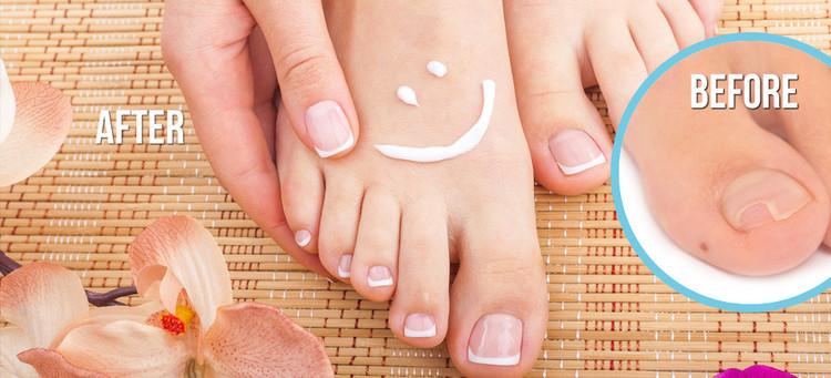 Top 4 Remedies To Treat Toe Nail Fungus Naturally