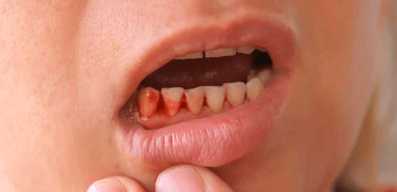 Effects of poor dental hygiene on your physical and mental health