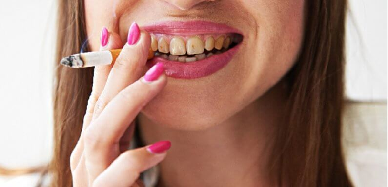 How Can Say! Does Smoking Affect Teeth and Gums
